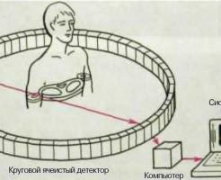 Диагностика организма методом компьютерной томографии