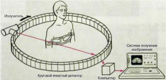 Принцип работы томографа
