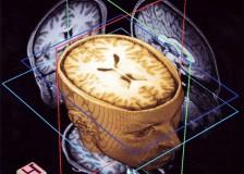 Как делают МРТ головного мозга?