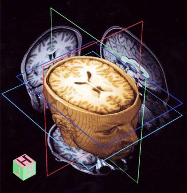 3D cнимок головного мозга