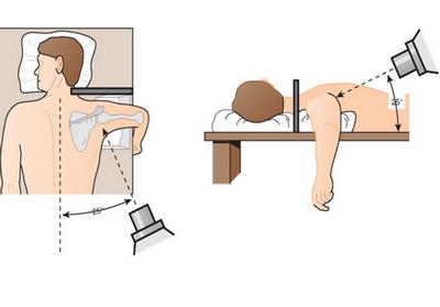 Процедура обследования МРТ