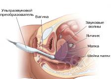 Что показывает вагинальное УЗИ?