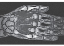 Своевременное обнаружение патологий кисти на МРТ лучезапястного сустава