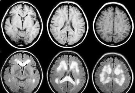 Снимки мозга томографом