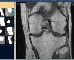 Диагностический метод МРТ коленного сустава