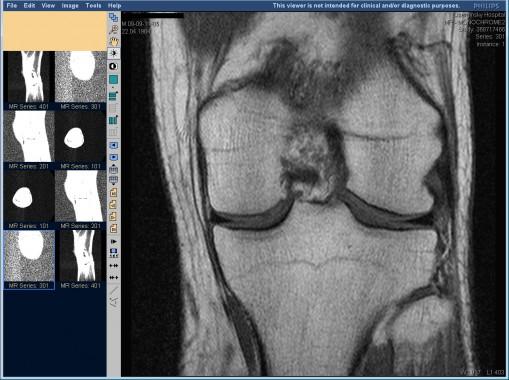 Фронтальная проекция коленного сустава на МРТ