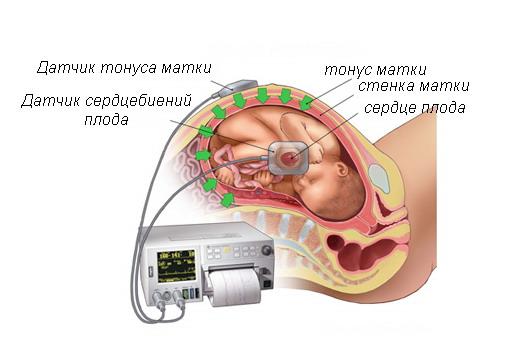 Процесс кардиотокографии