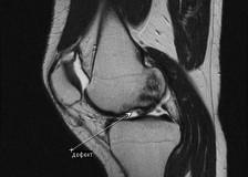 Когда назначают МРТ колена?