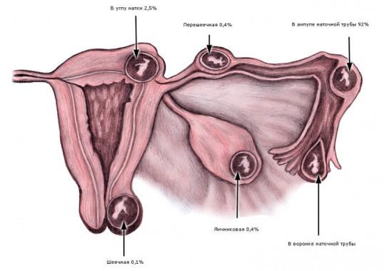 Места внематочной патологии