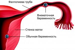 Протекание внематочной беременности