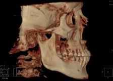 Необходимость компьютерной томографии зубов в стоматологии