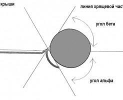 Расшифровка УЗИ тазобедренного сустава у грудничков