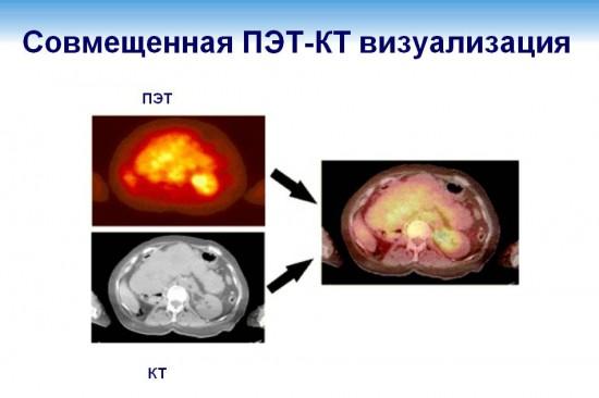Совмещенная ПЭТ-КТ визуализация