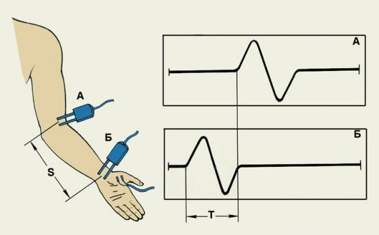 Определение скорости проведения импульса
