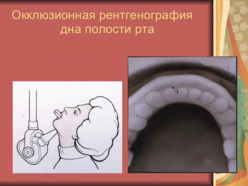 Окллюзионная рентгенография