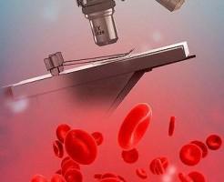 Как сдавать клинический анализ крови?
