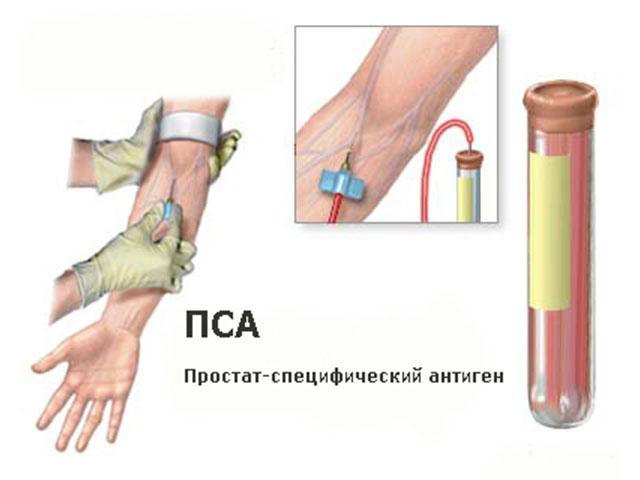 Простат-специфический антигенный анализ крови