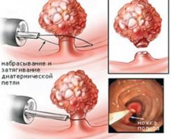 Точное исследование состояния желудка на гастроскопии