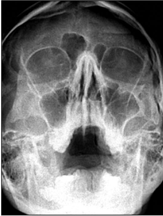Рентгенограмма носа и околоносовых пазух