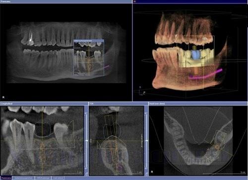 3D рентген