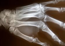 Сцинтиграфия костей — метод лучевой диагностики