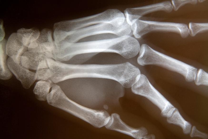 Сцинтиграмма костей кисти