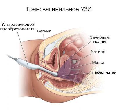 Процедура трансвагинального УЗИ