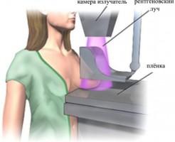 Какой метод лучше – УЗИ или маммография молочной железы?
