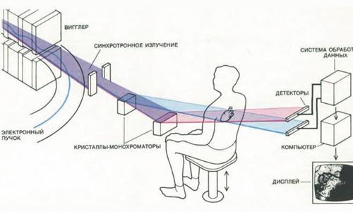 Принцип получения рентгеновского изображения