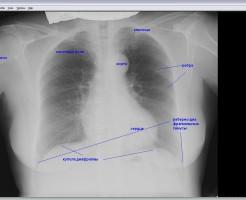 Выявление патологий на рентгене легких