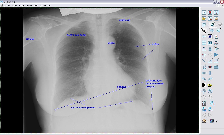 Органы грудной клетки на рентгене