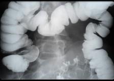 Обследование кишечника ирригоскопией или колоноскопией – что лучше?