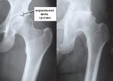 Видимые патологии на рентгене тазобедренного сустава