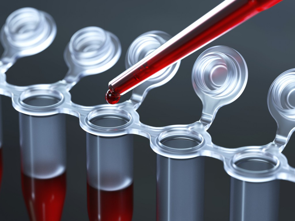 подготовка к анализу на холестерин в крови