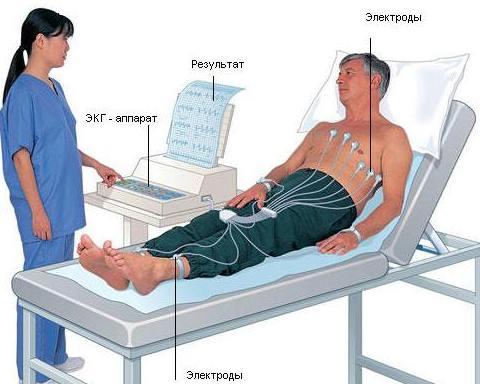 Получение электрокардиограммы