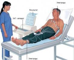 В каких случаях и как делают ЭКГ сердца?