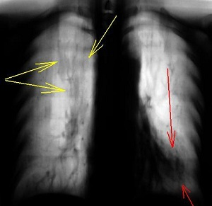 Темные пятна на флюорографии легких