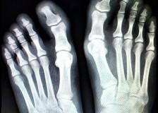 Что можно увидеть на рентгене ноги?
