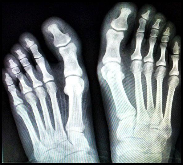 Фото стопы на рентгене