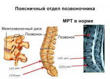 Метод диагностики при помощи МРТ пояснично-крестцового отдела позвоночника