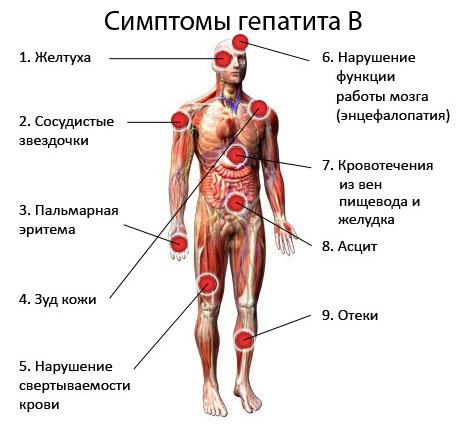Симтоматика заболевания гепатитом В