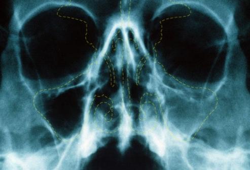 Рентген с контрастированием