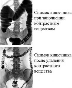 Рентгеновские снимки кишечника