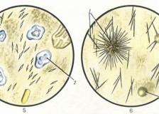 Выявление патологий органов пищеварения при анализе кала на копрограмму