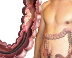 Для чего делают колоноскопию кишечника?