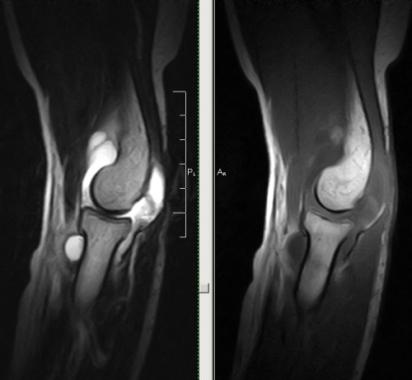 Снимок магнитной томографии локтевого сустава