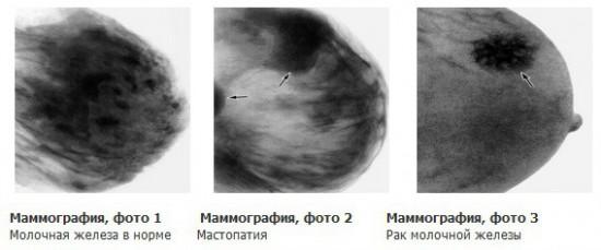 Заболевания на снимке маммографа