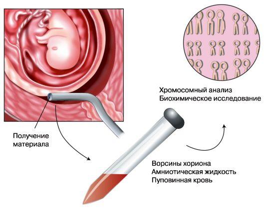 Диагностика наследственных болезней