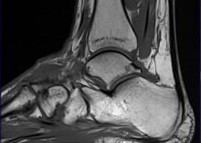 Направление на МРТ стопы и голеностопного сустава