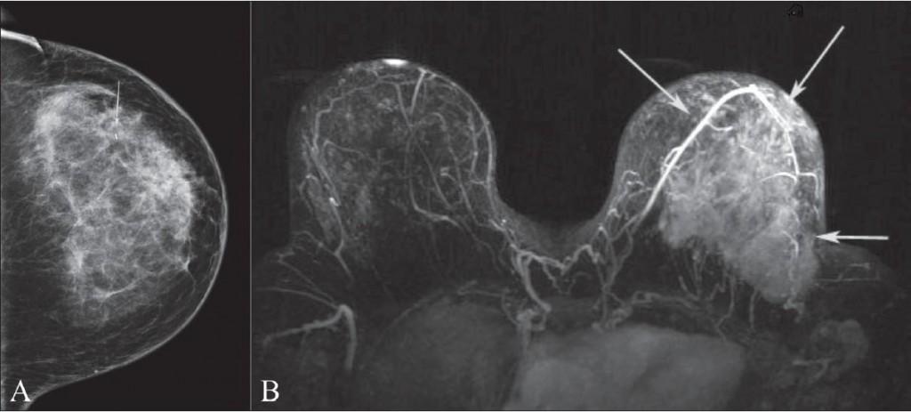 Рентгеновский снимок молочной железы